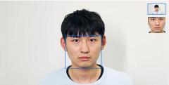 百度大脑皮肤分析接口正式上线商用啦